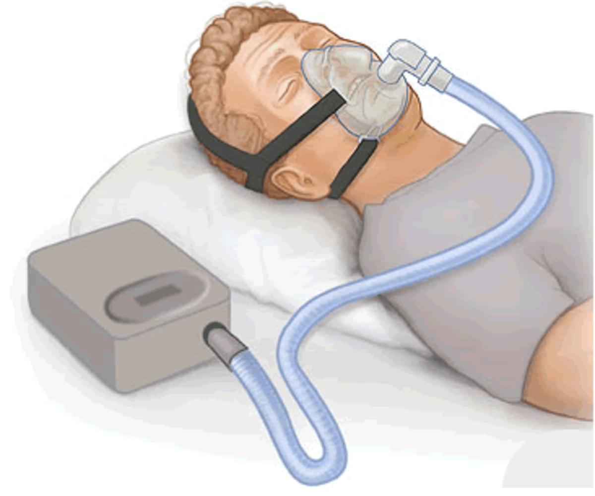 Depiction of CPAP