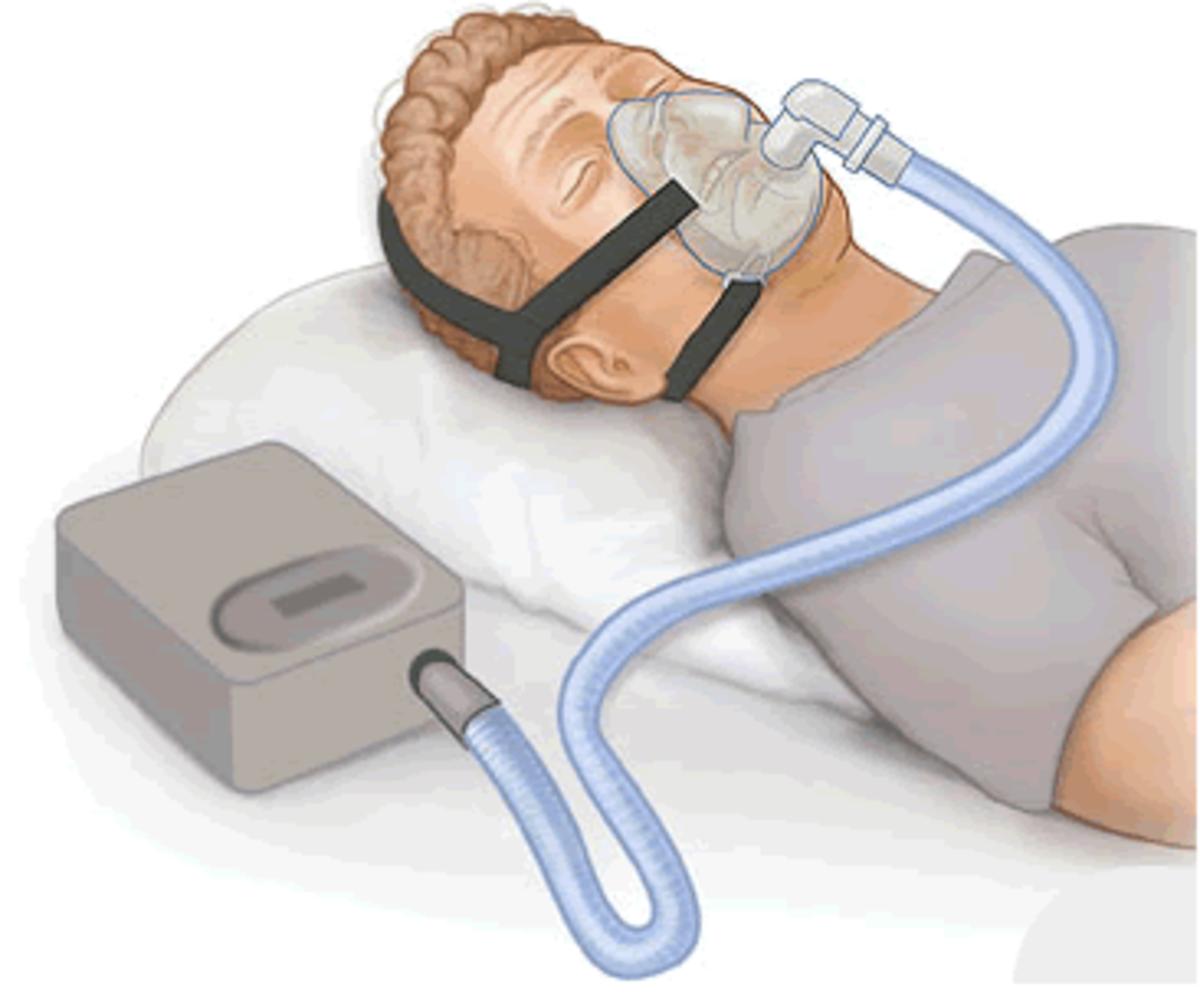 Living with Sleep Apnea