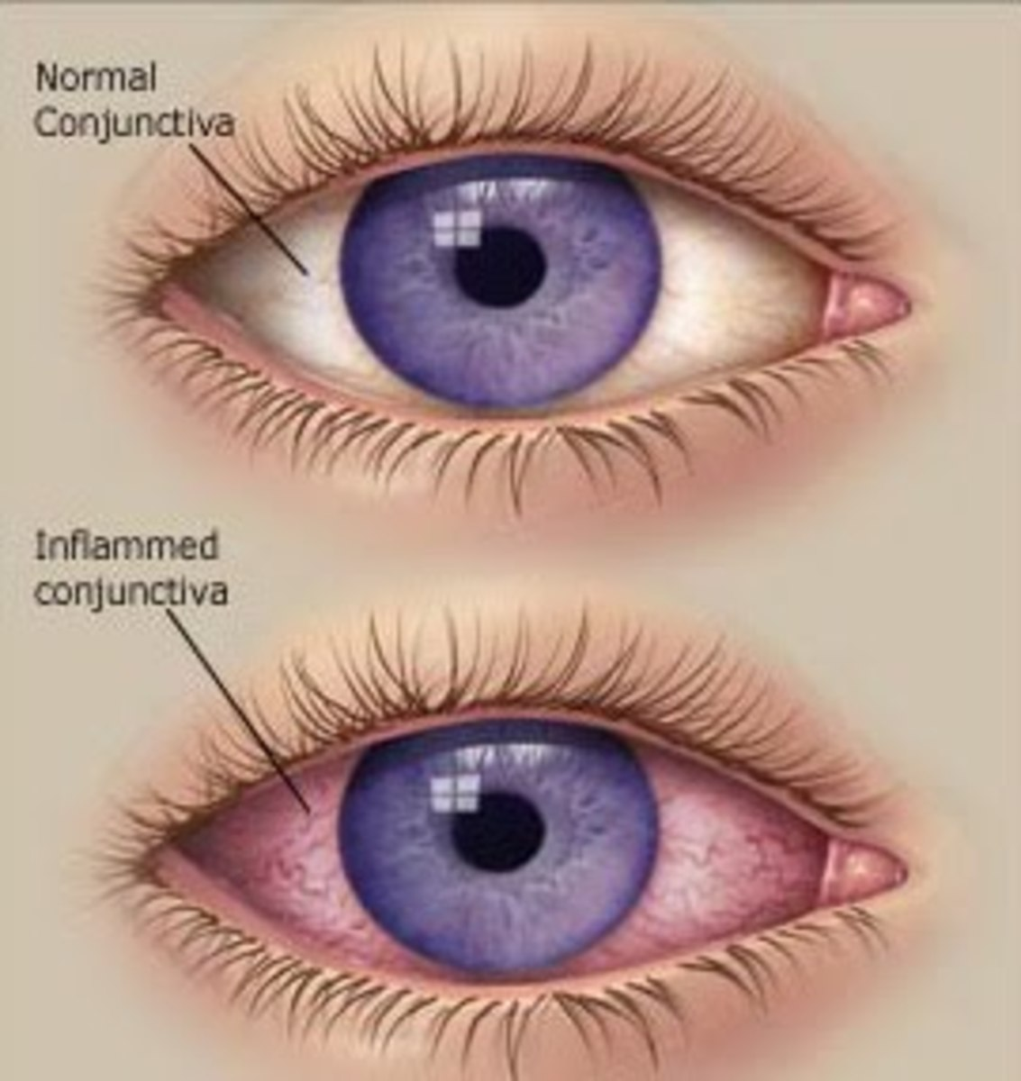 Top eye- Normal clear eye Bottom eye- Sore eye , reddish