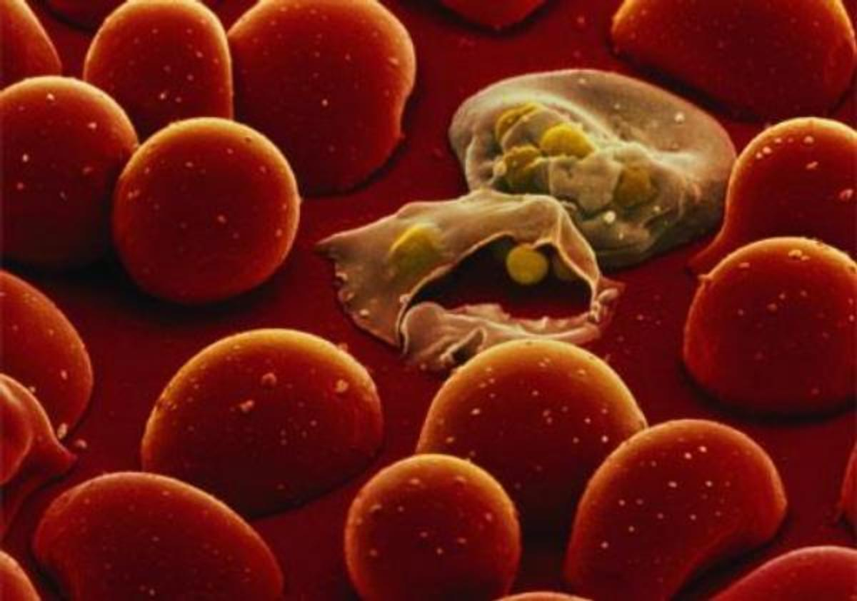 Malaria destroying red blood cells