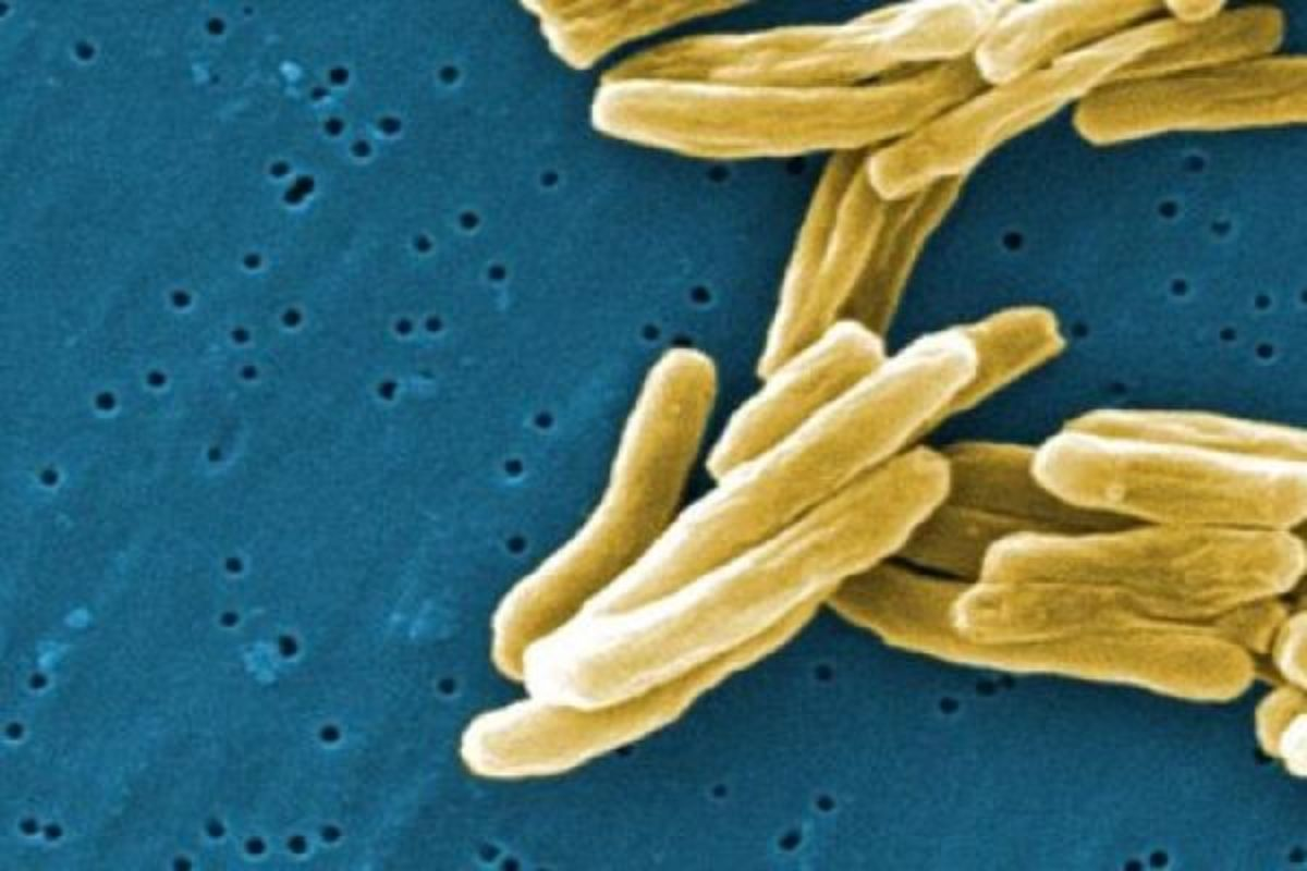 A microphotograph of mycobacterium tuberculosis