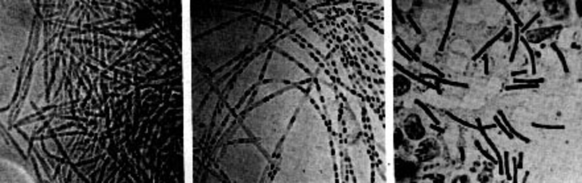 First photomicrograph even taken of a microorganism, anthrax bacillus. Photo taken by Robert Koch.