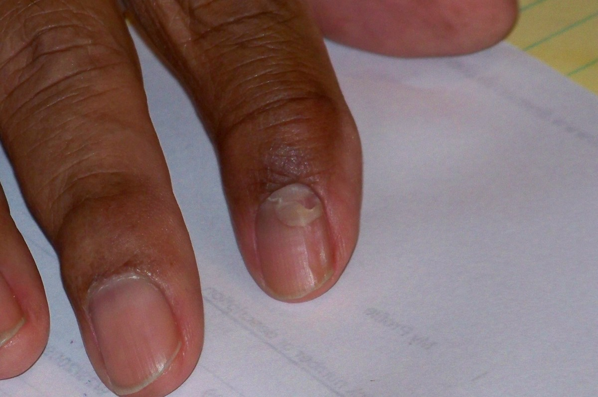 The uric acid is now reduced and the fingernail is beginning to heal.