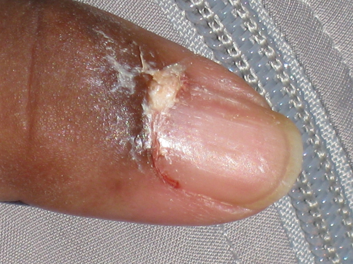 This is the uric acid oozing from patient's finger shows how it drys so hard