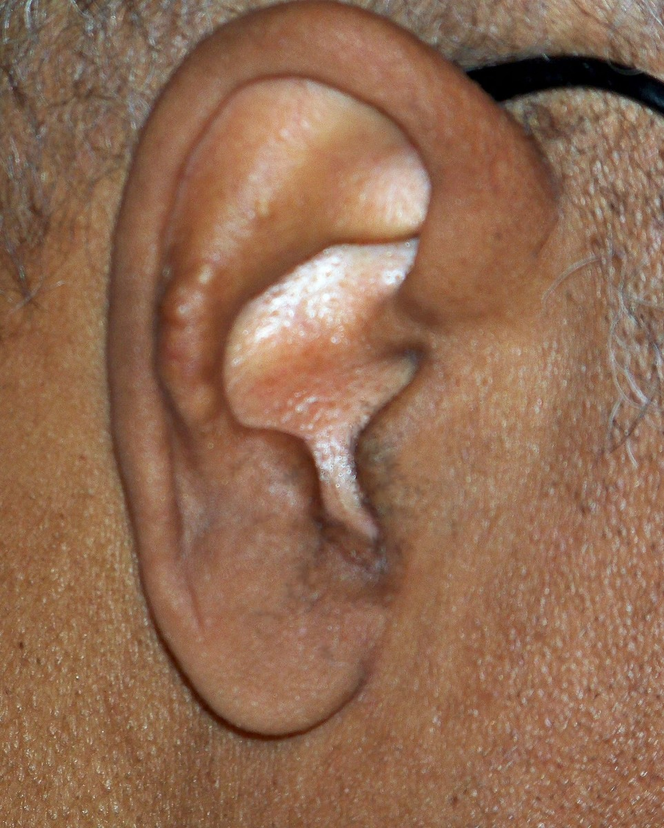 White Papules on the Ear - Medscape