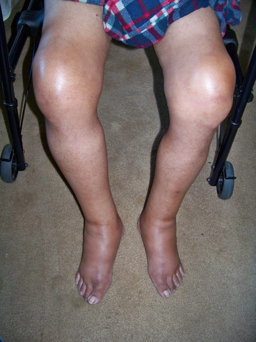 how-to-prevent-gout