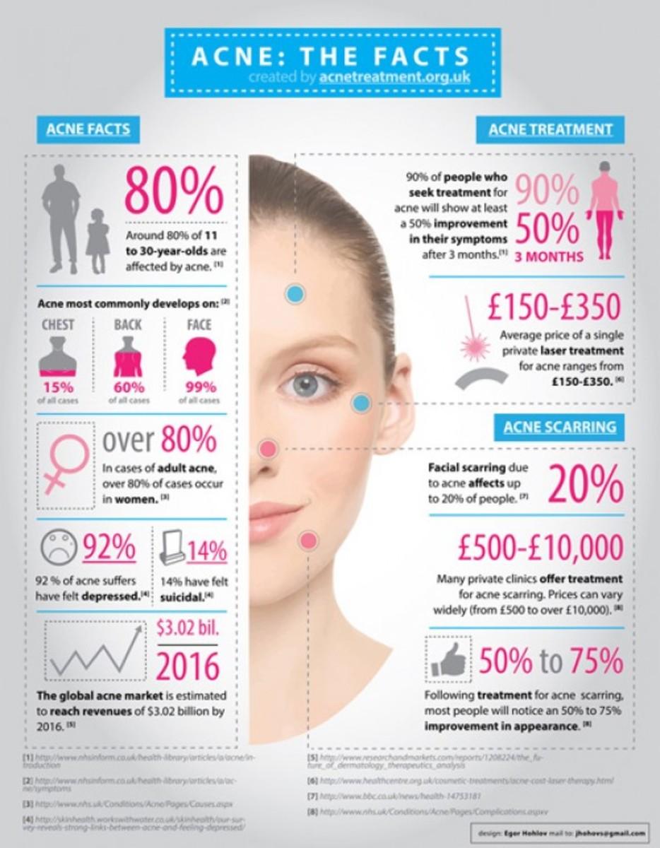 Acne in Statistics