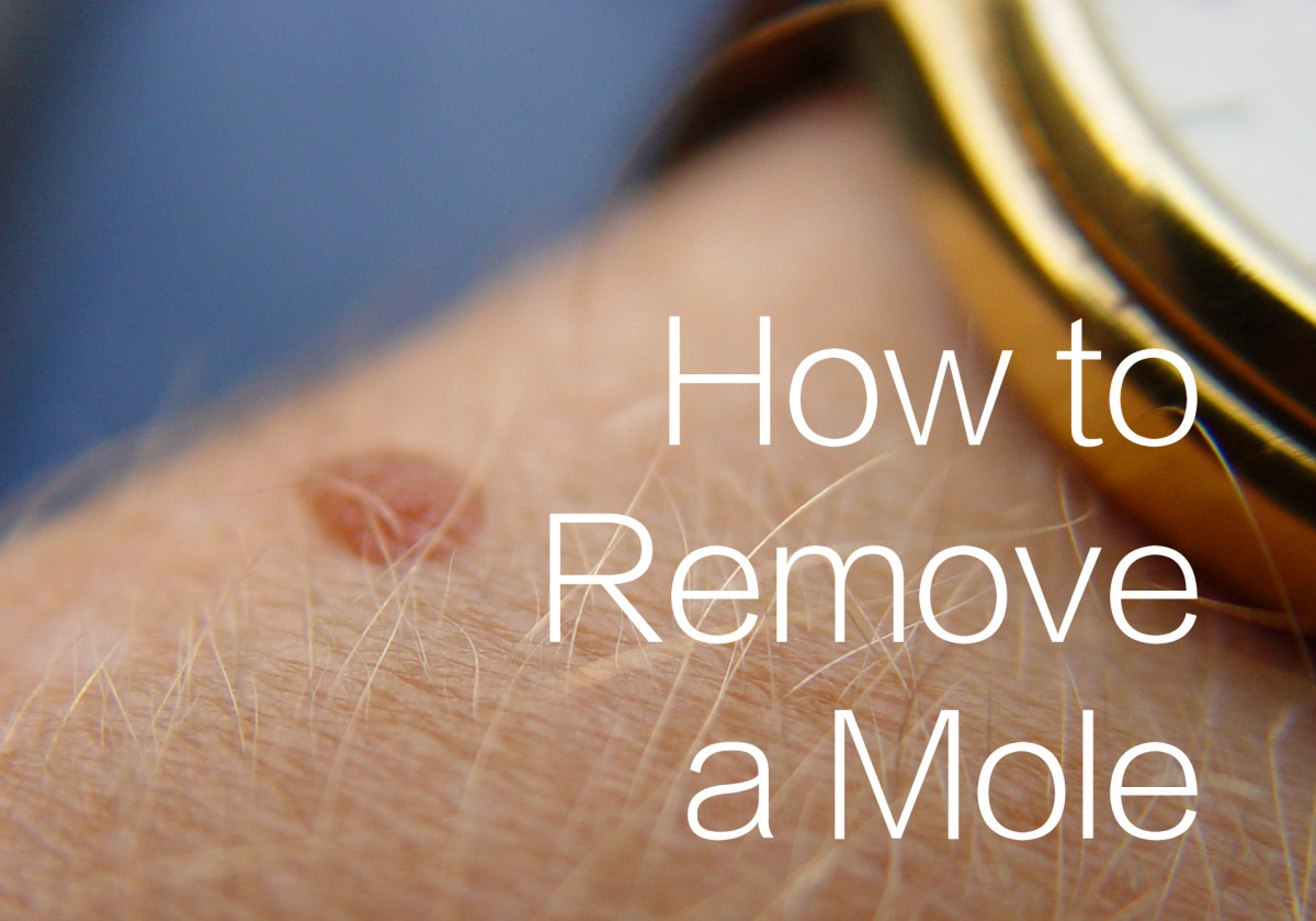 How to Use Apple Cider Vinegar to Treat Moles