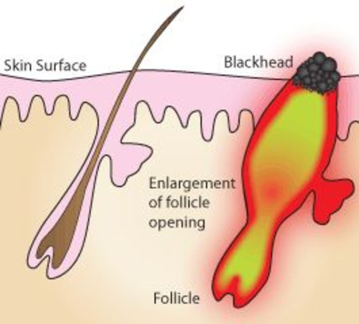 how-to-we-get-rid-of-blackheads-and-whiteheads
