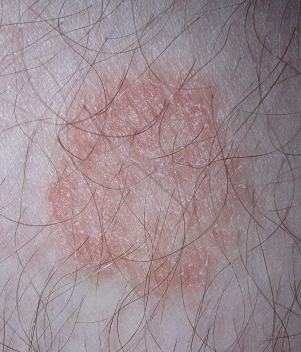 Ringworm on a male leg.