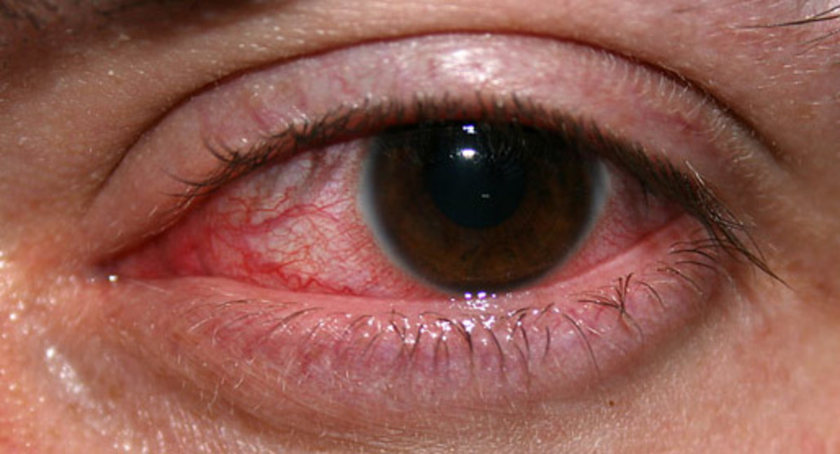 An eye with non-ulcerative sterile keratitis