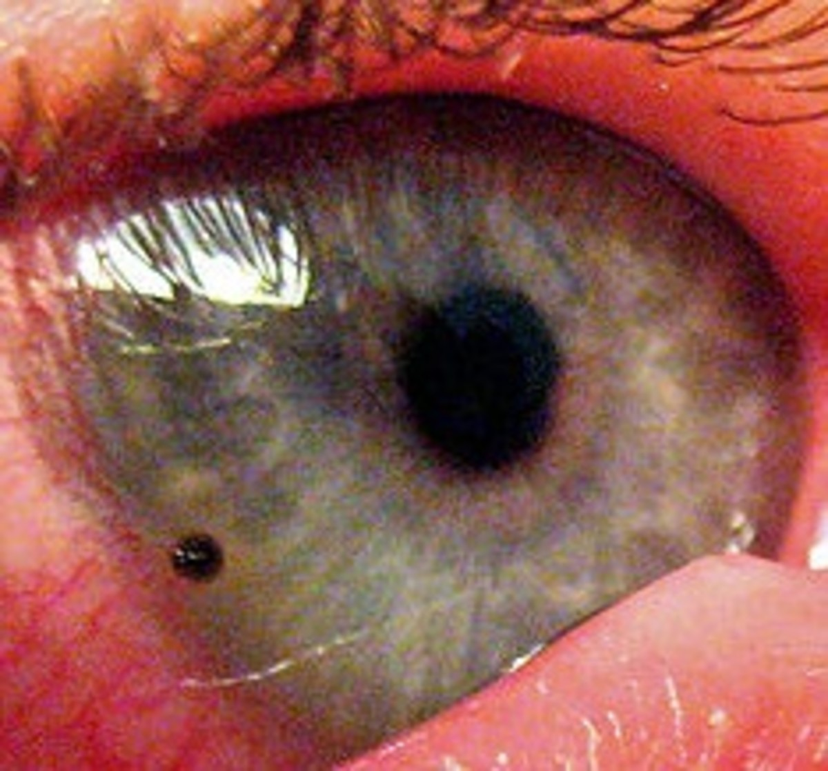 A metallic foreign body embedded in a patient's cornea near the limbus (where the cornea meets the white part of the eye).