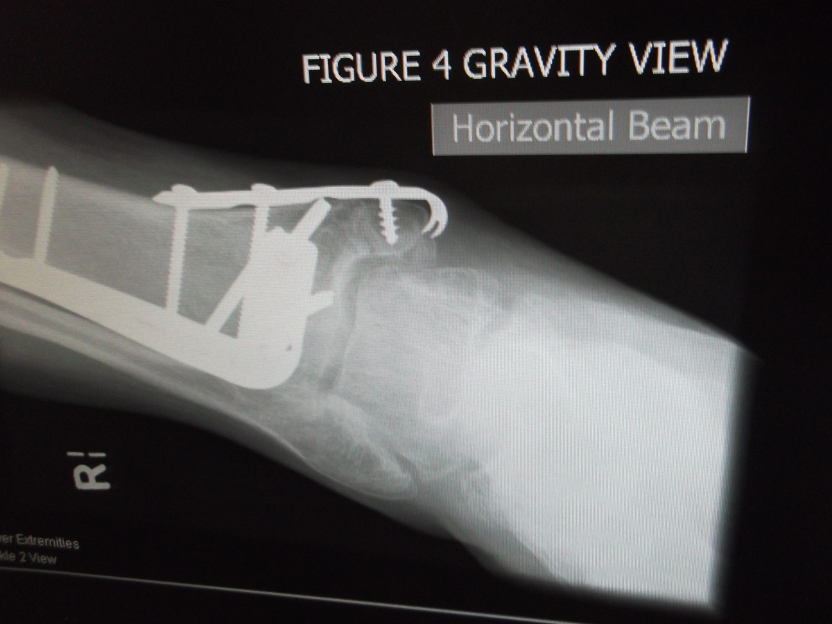 This is one of the later x-rays taken of my husband's ankle after surgery. It is a 'gravity view', clearly marked on the x-ray..