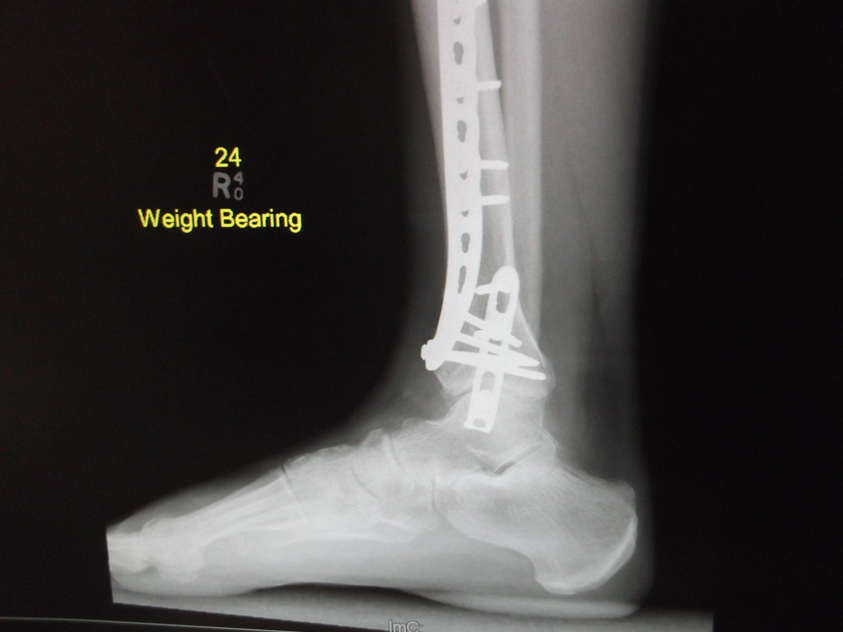 One of the 'weight bearing' xrays taken of his broken ankle. This is one of the side views. It is interesting to see the exact positioning of the plates and screws.