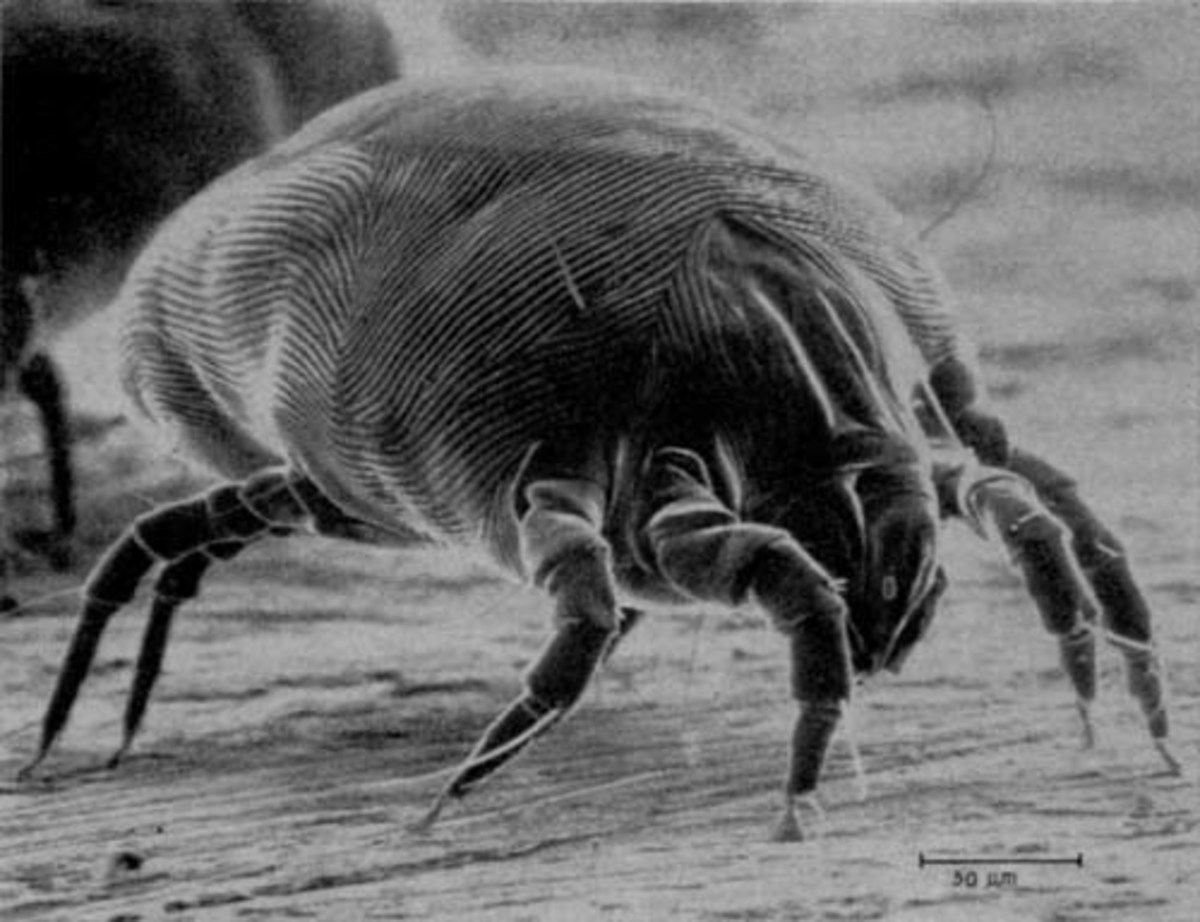 How to Control Your Home's Dust Mite Population