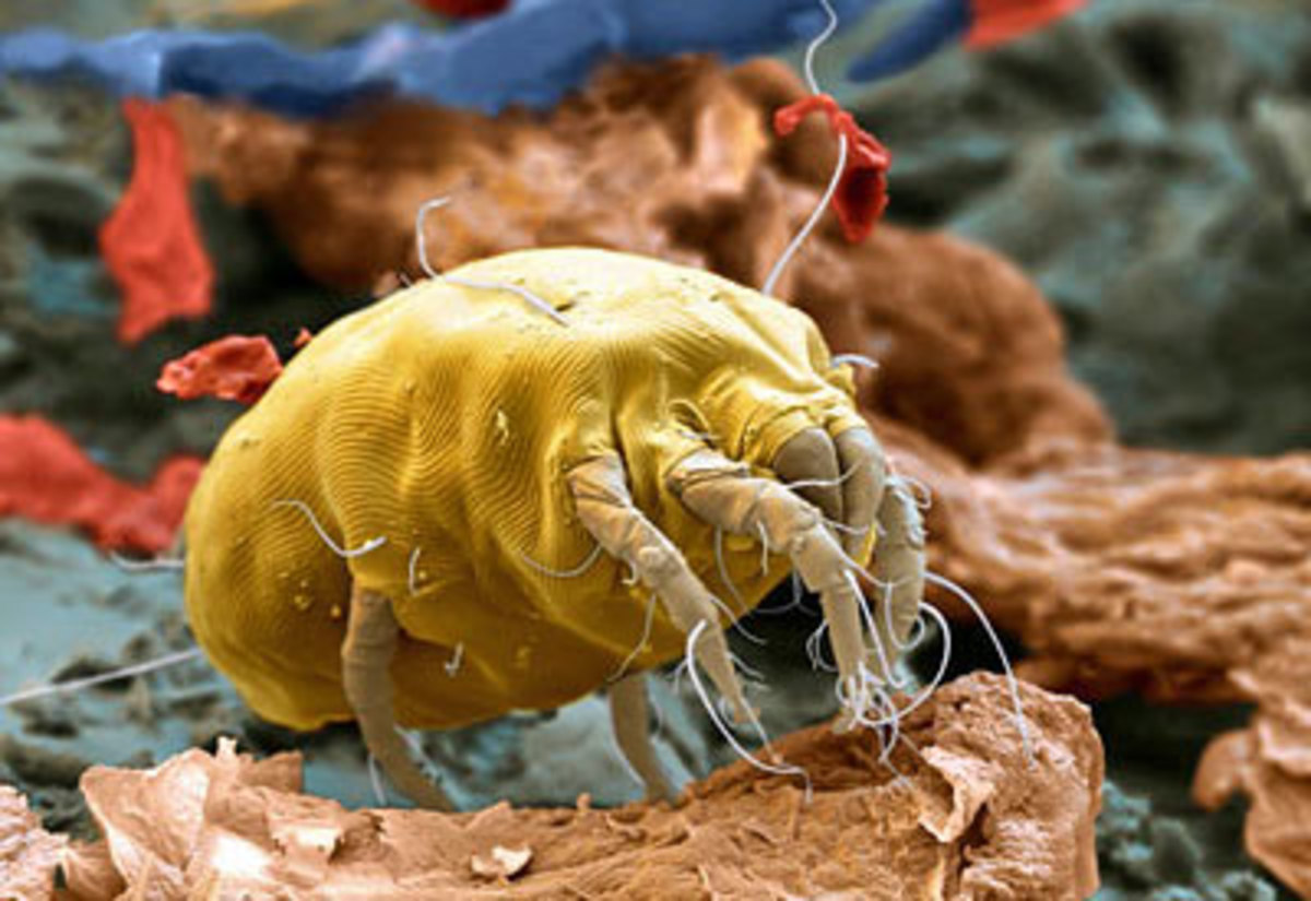 You can with careful cleaning and the other tips above control and eliminate dust mites from your house. But its a long term thing that your going to have to keep doing.