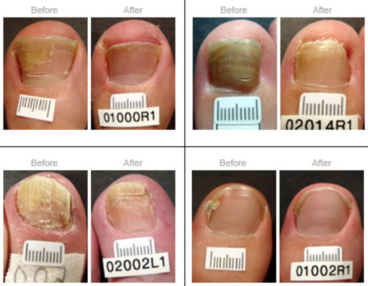 It is important to learn of any contra indications before you perform any nail treatment on your clients. This can range from fungal infection to cuts/open wounds bacterial infections or skin disorders.