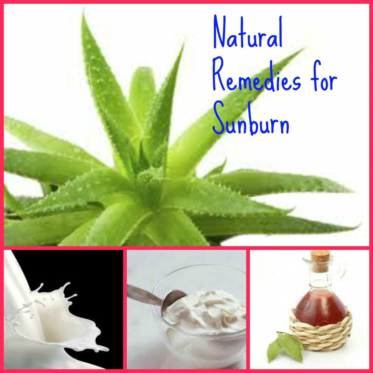 Natural Home Remedies for Sunburn