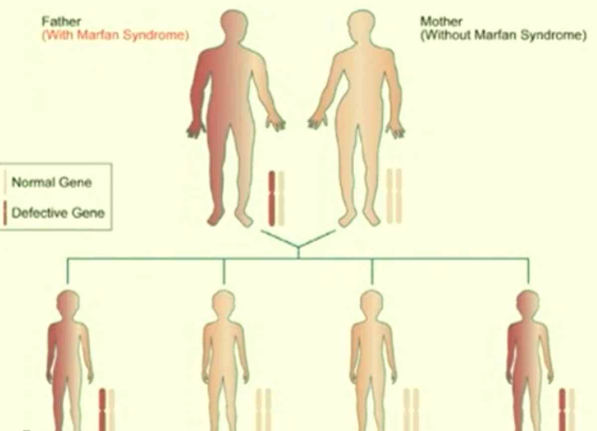 Marfan Syndrome - Pictures, Symptoms, Causes, Treatment, Life Expectancy