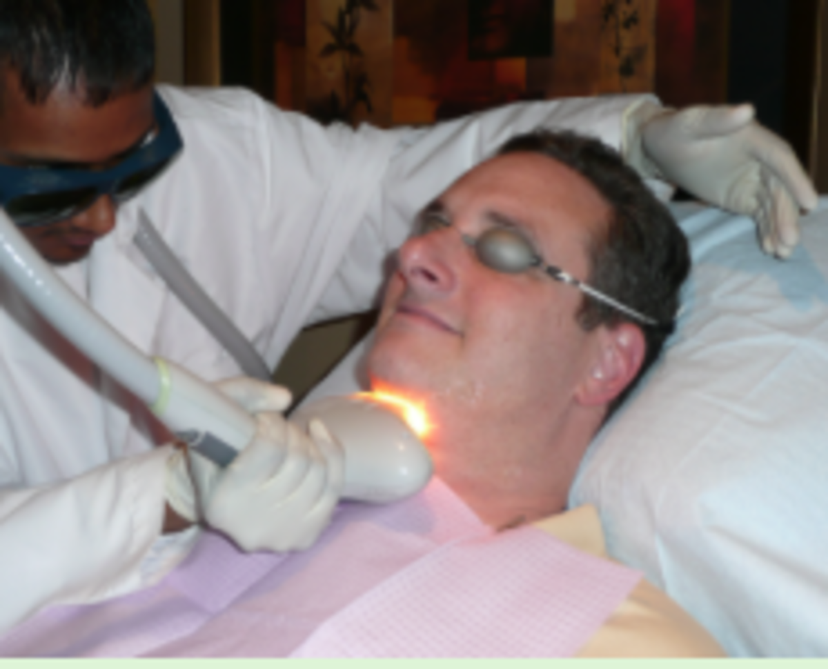 Goggles protect your eyes during the treatment.  No anaesthetic or numbing cream is required.
