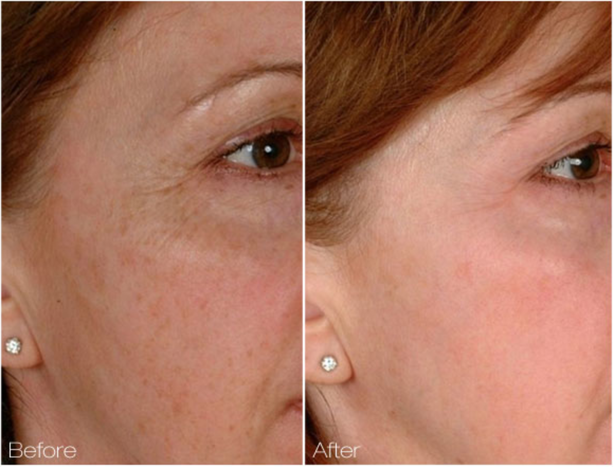 Review of Cutera 2D Skin Rejuvenation Procedure