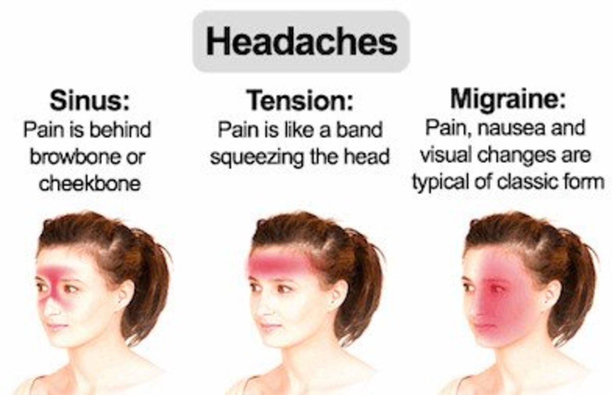 Tension headache V/s Migraine V/s Sinus Headache