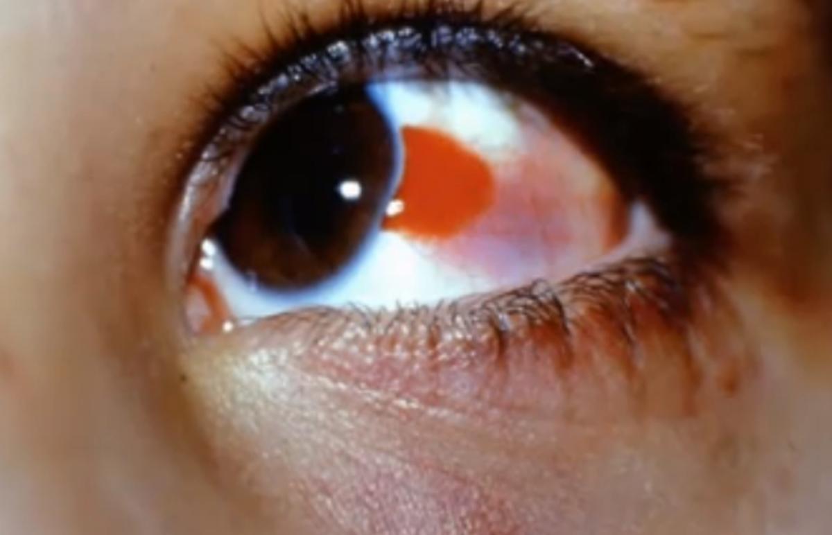 burst-blood-vessel-in-eye-symptoms-causes-treatment