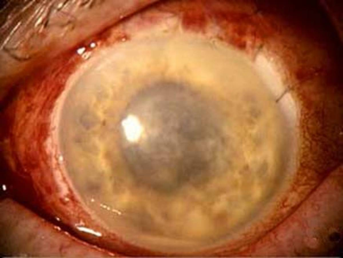 Sympathetic Endophthalmitis-An eye emergency