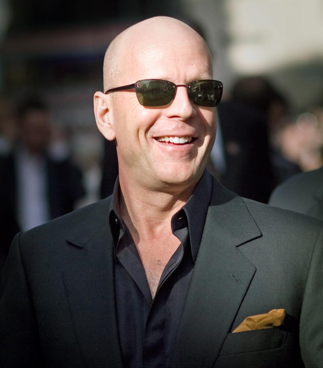 """""""Better a bald head than no head at all"""" - Seamus MacManus"""