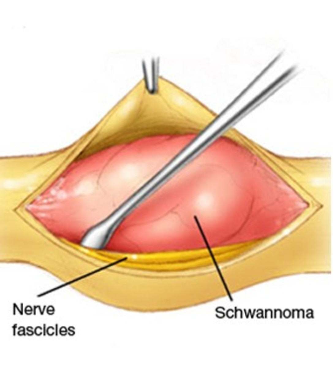 Schwannoma - Symptoms, Causes, Treatment, Pictures, Diagnosis