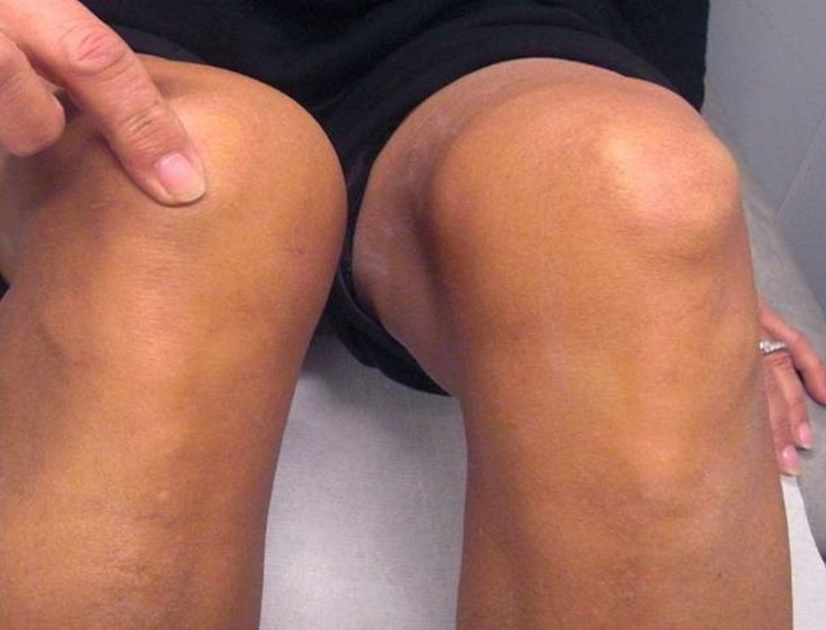 Patella Alta - Treatment, Symptoms, Causes, Diagnosis, Surgery
