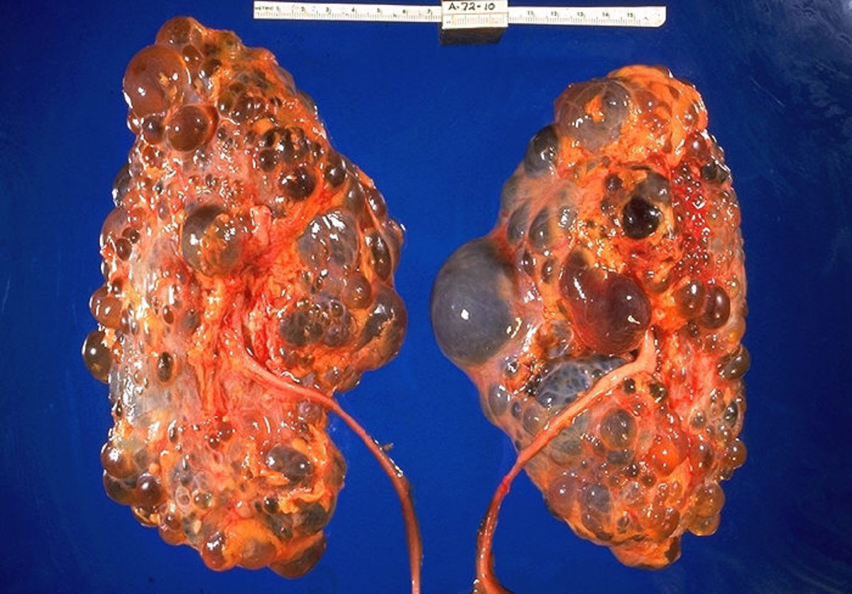 Polycystic Kidney Disease Gross Pathology