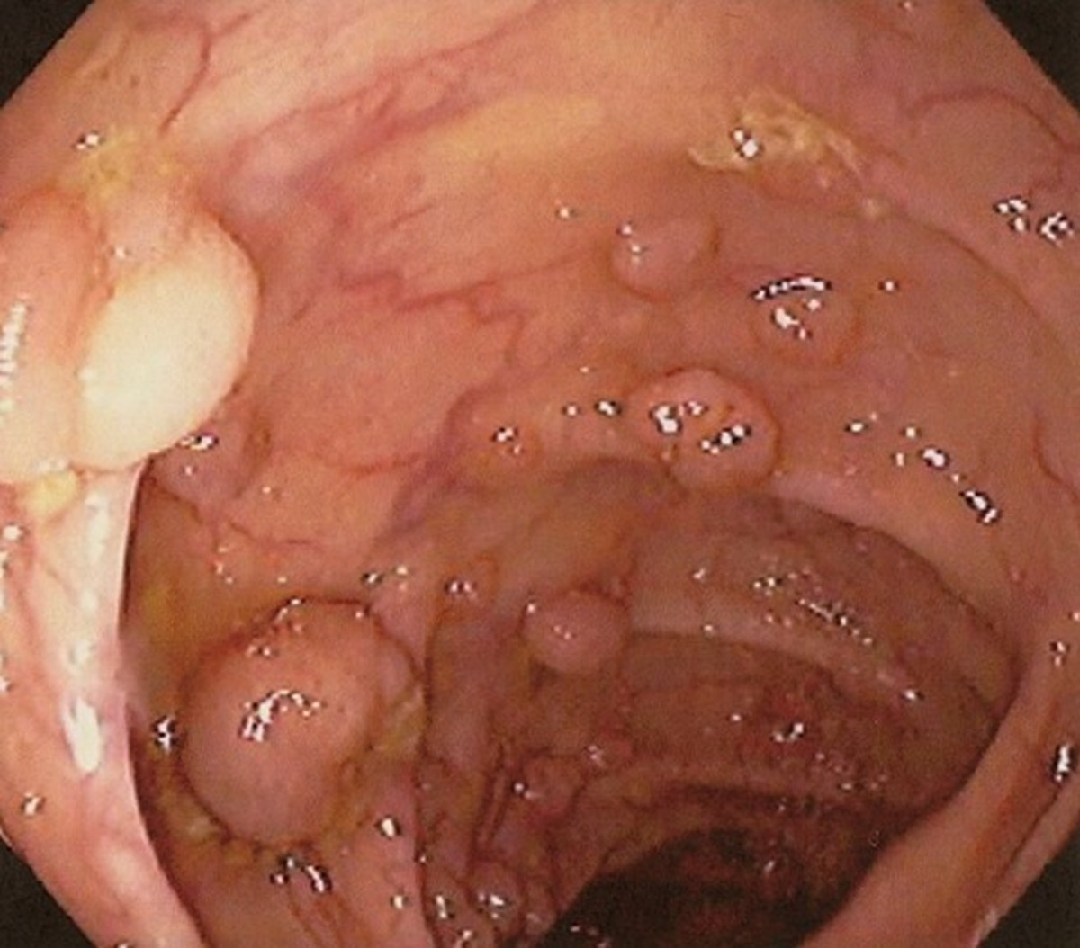 Colon Polyps - Pictures, Treatment, Types, Symptoms, Causes