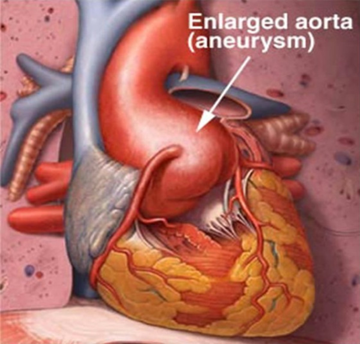 Enlarged Aorta - Symptoms, Treatment, Surgery, Pictures