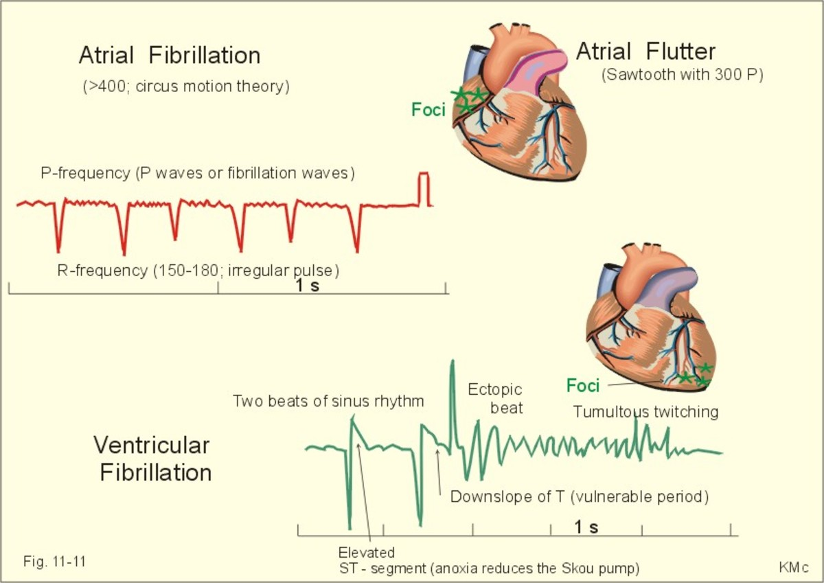 This is the commonest fatal arrhythmia in ischemic heart disease. The myocardium of the ventricles contract asynchronously and fractionally to produce a fibrillary movement without any sustained synchronous beat.