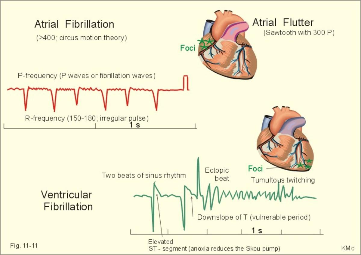 Ventricular Fibrillation, Clinical Manifestation, Diagnosis, And Treatment Of Atrial Fibrillation