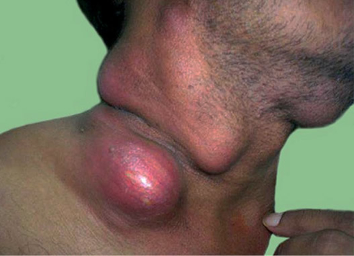 In about 80% of cases, the disease presents with painless lymphadenopathy, the nodes are moderate to large in size, rubbery in consistency, discrete and are most prominent in the neck and axillae.