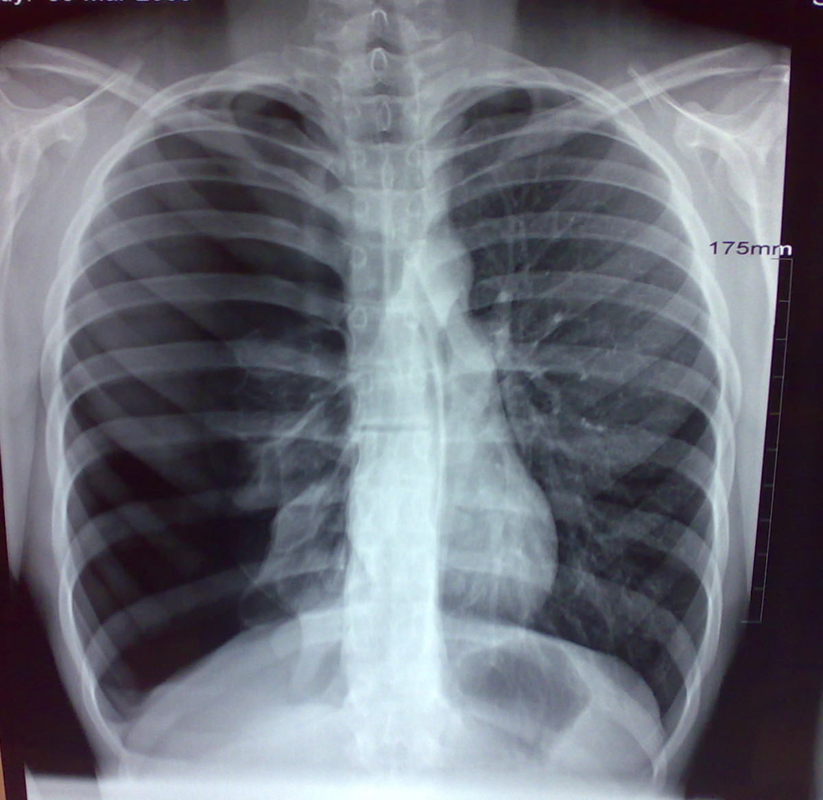 Pneumothoraces can be caused by physical trauma to the chest (including blast injury), or as a complication of medical or surgical intervention