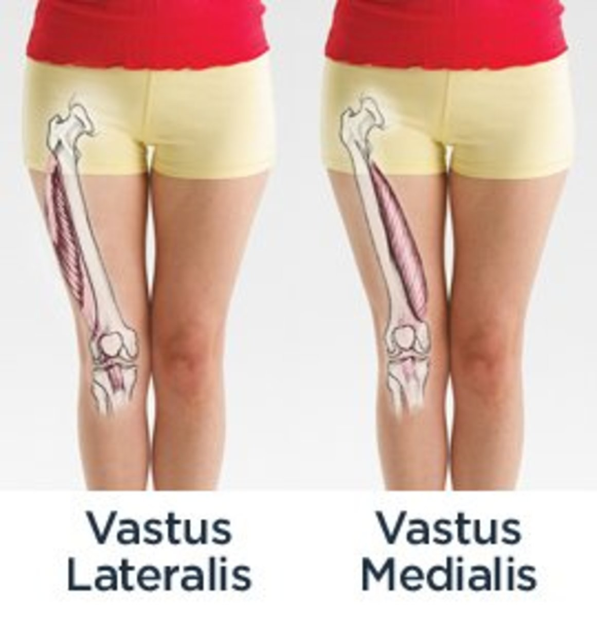 Open diagram showcasing the bones and the muscles of the leg with special emphasis on the Vastus Medialis Oblique and Lateralis Muscles