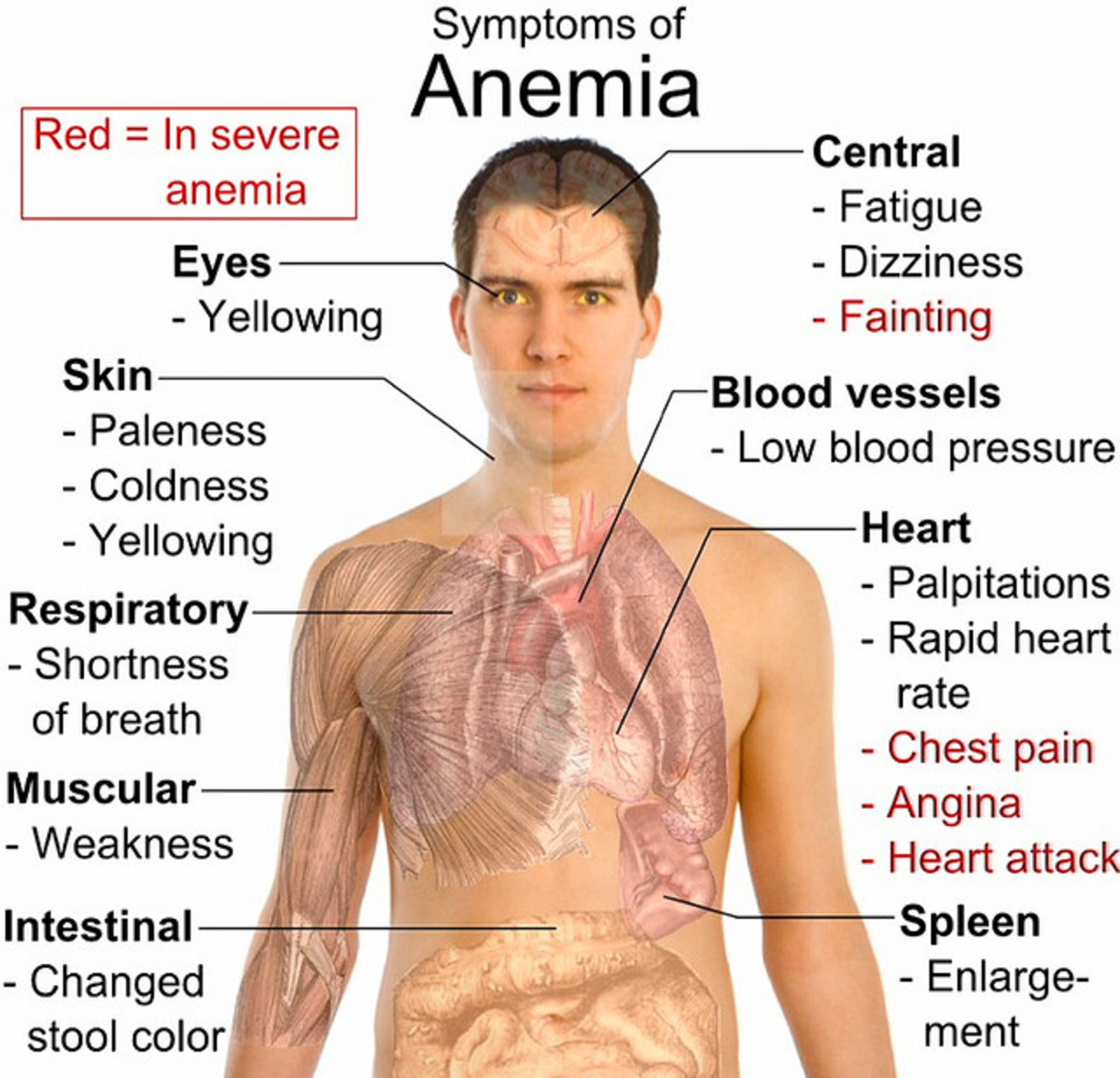 Common symptoms of anemia.