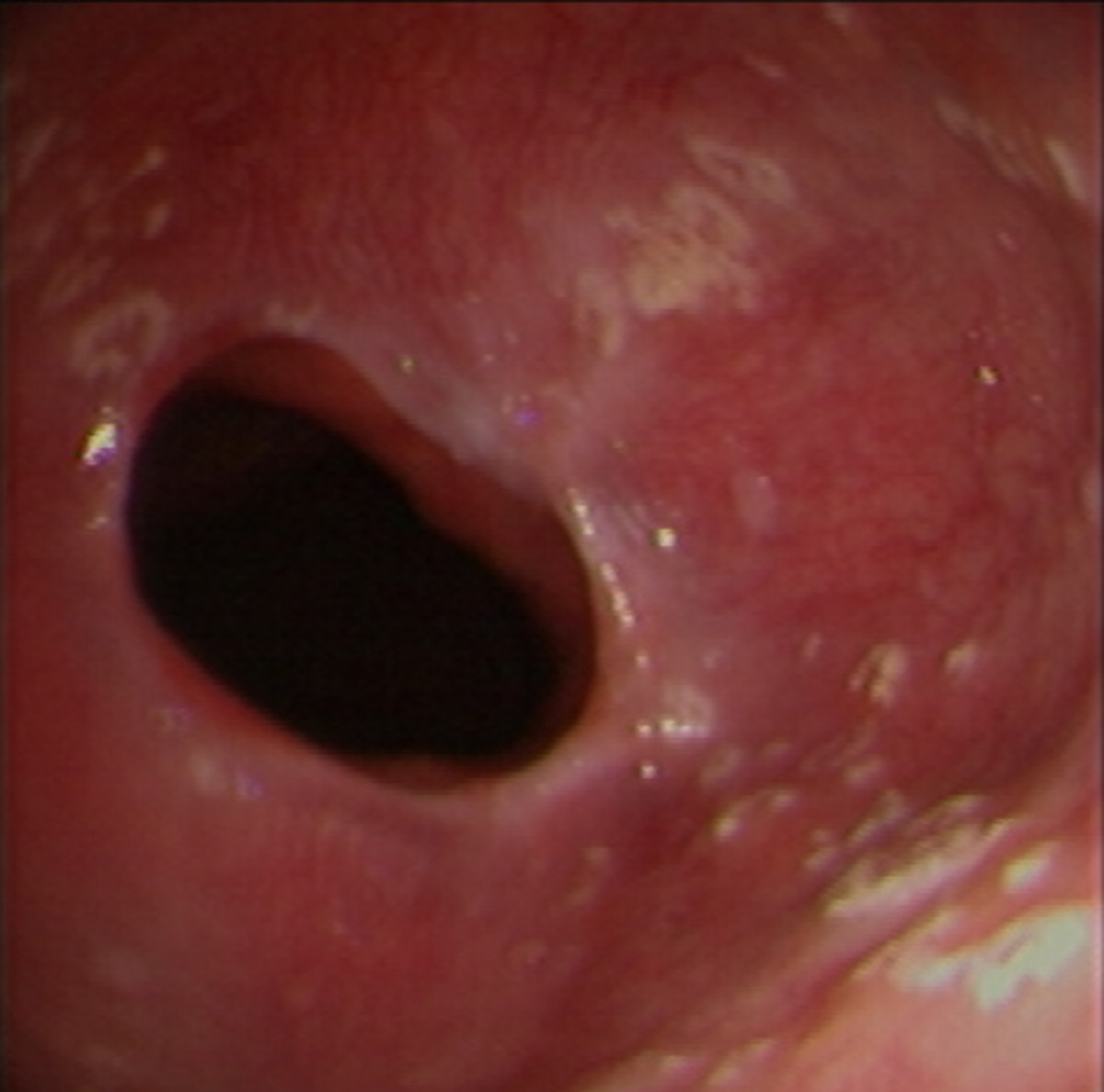 Candida on the esophagus (white patches)