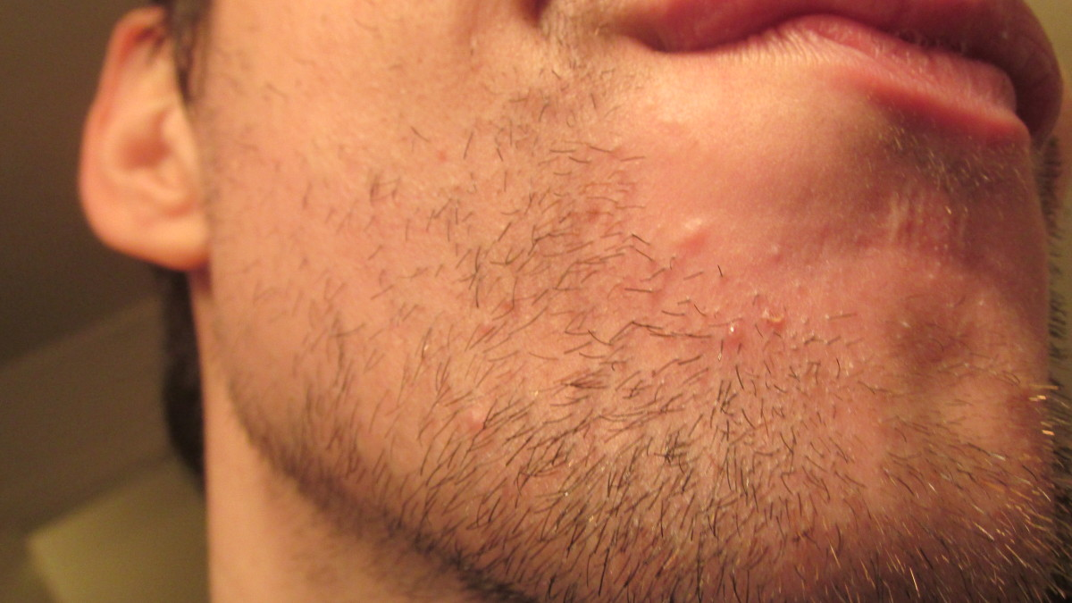 This is 8 days into using tea tree oil, and my acne was way worse! Hence, I had to take the close-up!
