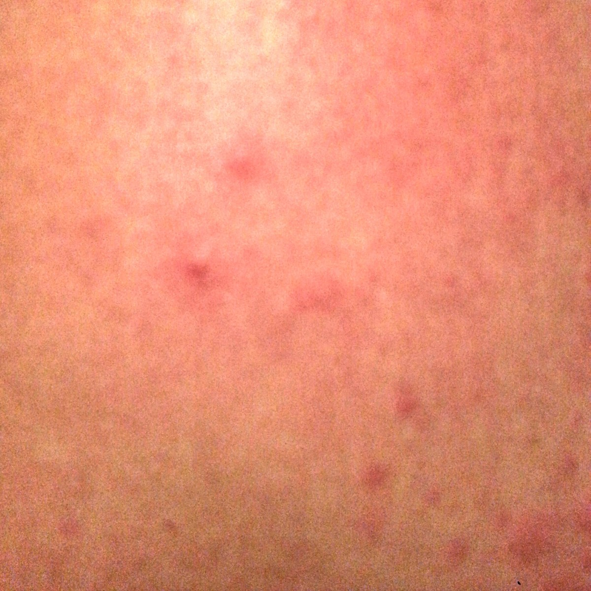 A picture of the back of my leg during one of my more severe breakouts. The red inflamed dots appear for about an hour, get increasingly swollen and irritating, then go away.