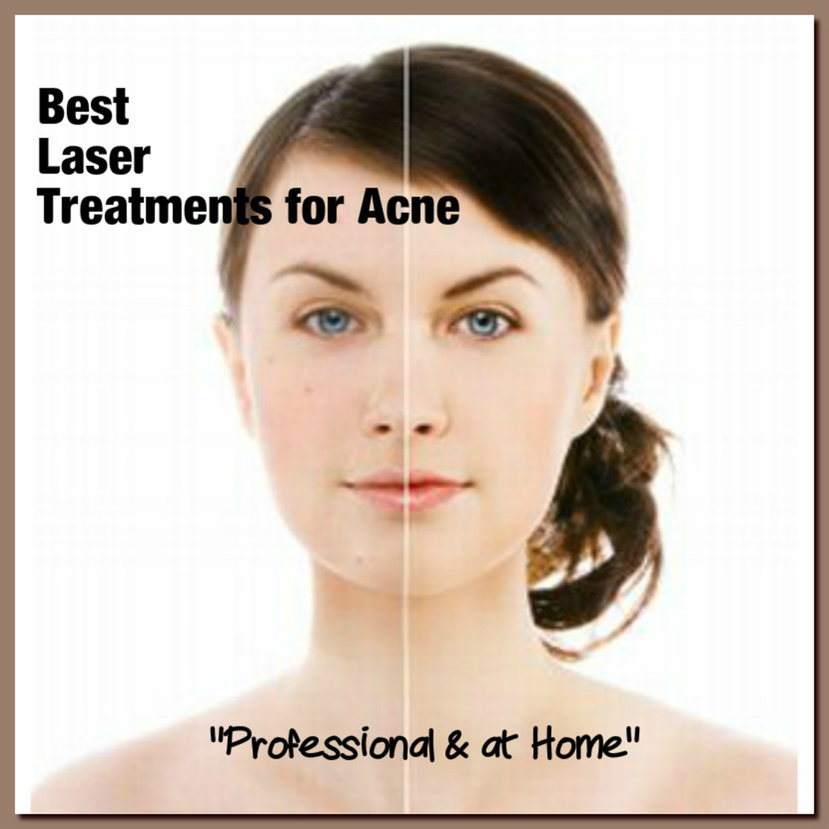 Best Laser Treatment for Acne, Top 3 at Home Acne Devices