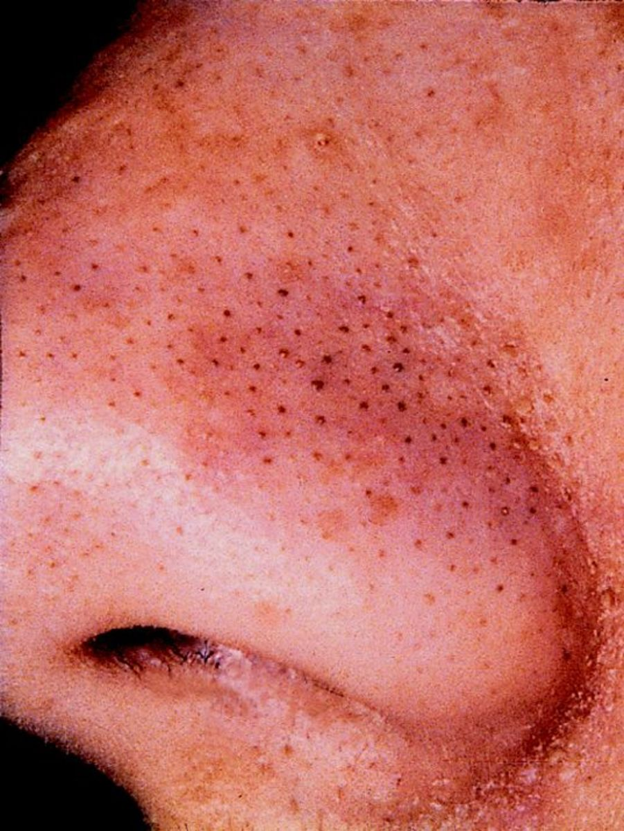 25 Easy Ways to Get Rid Of Blackheads Fast at Home | HubPages