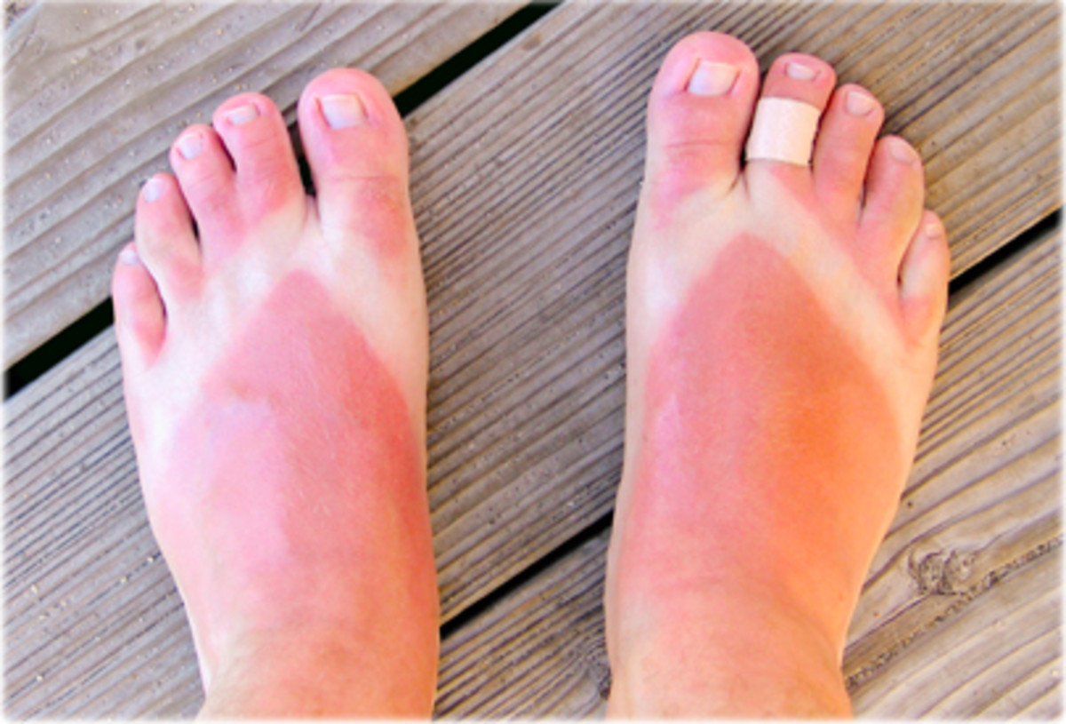 25 Easy Ways to Get Rid Of Sunburn Naturally at Home Fast
