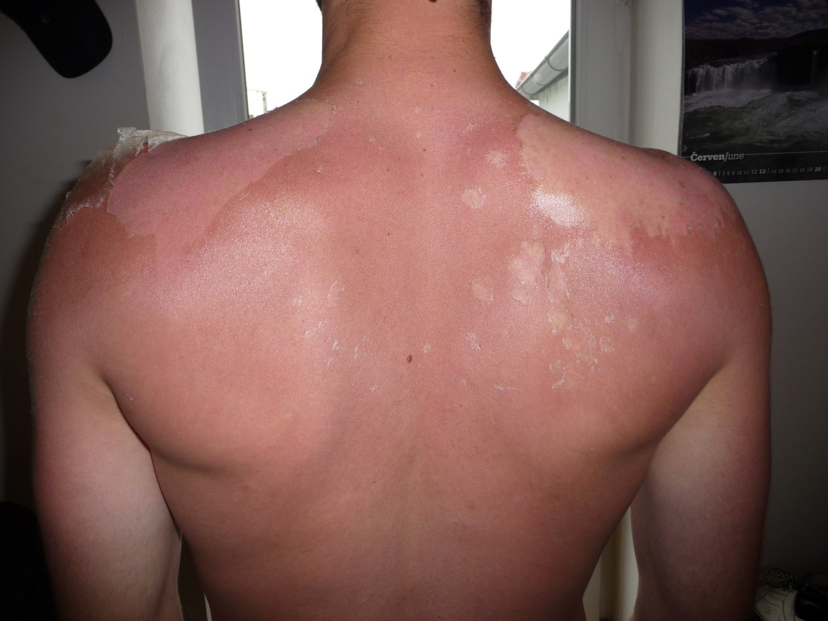 sunburnt back