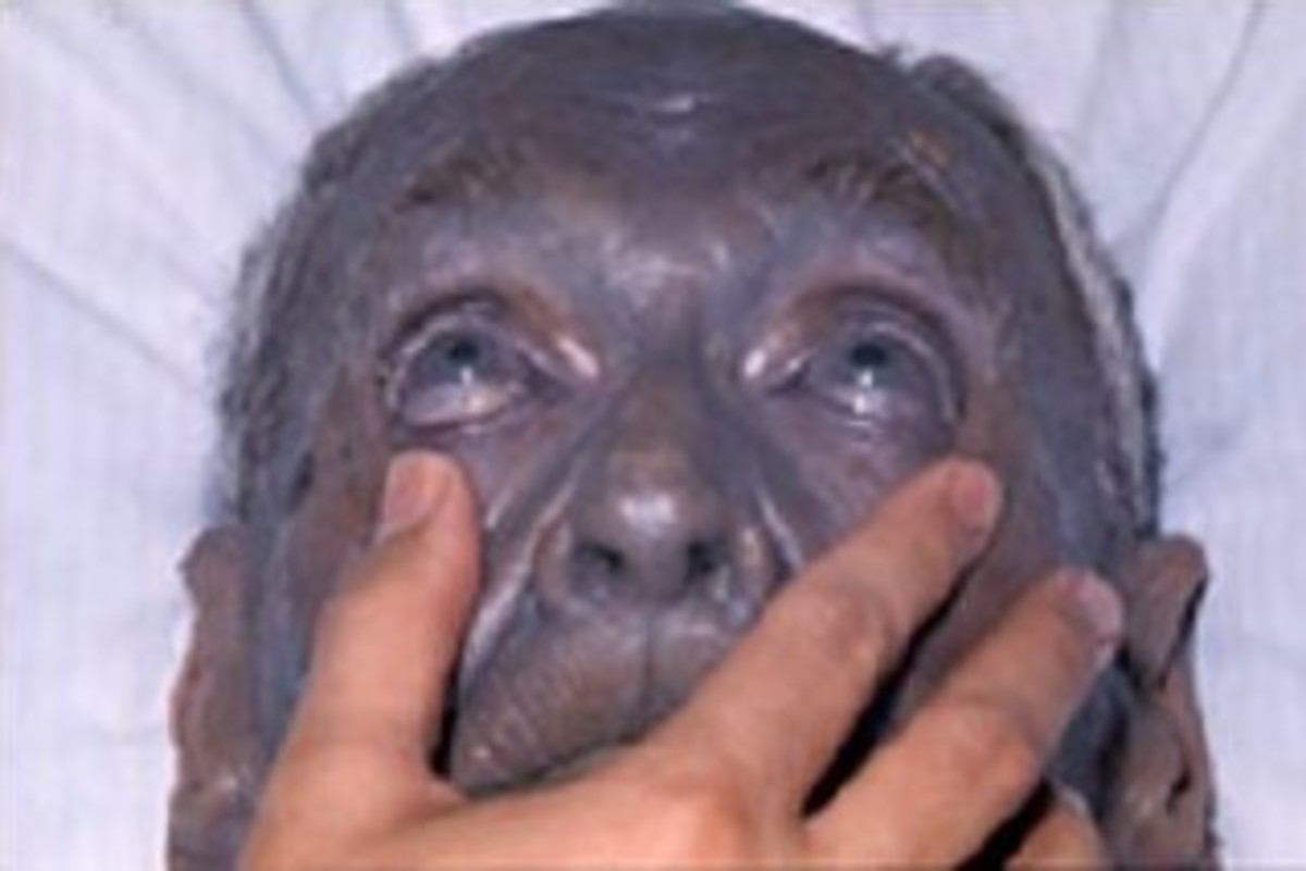 A case of  argyria.  Argyria has no known effect on health.