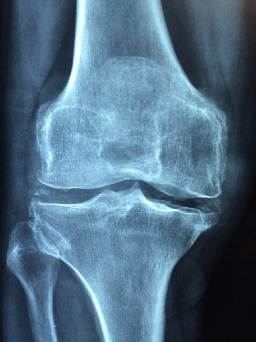 A knee joint affected by osteoarthritis