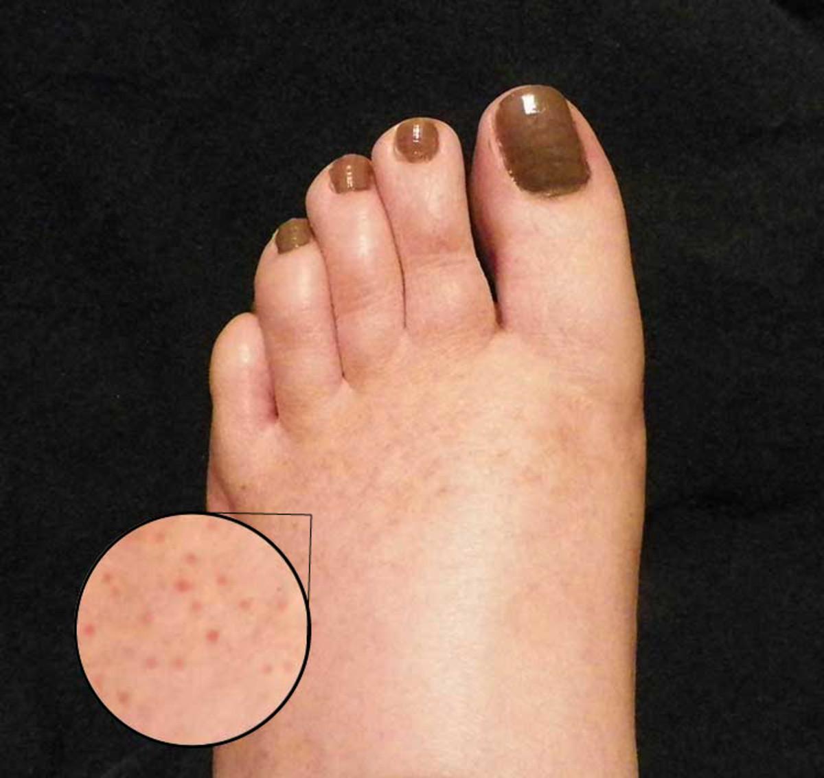 freckle on finger #11